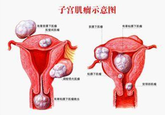 上海治疗子宫肌瘤首选医院【上海都市医院妇科】
