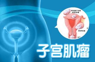 子宫肌瘤有哪些检查项目